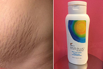 reduce stretch marks